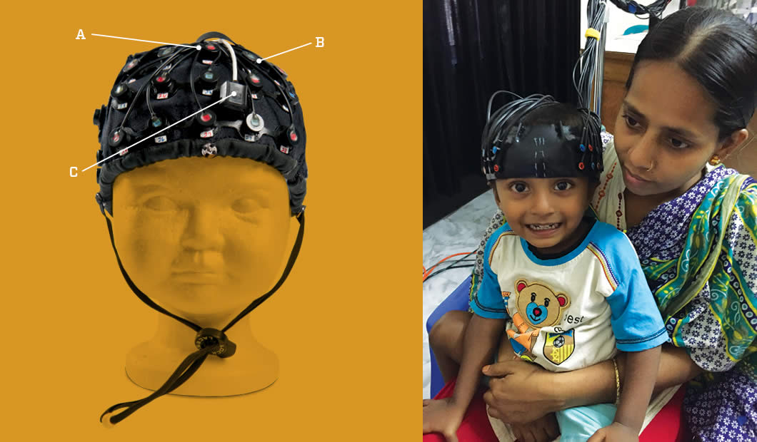 This functional near infrared spectroscopy (NIRS) cap is designed for infant brain measurement. The optical fibers are arranged in an alternating pattern of source fibers (A) and detector fibers (B) on the forehead over the prefrontal cortex. An accelerometer (C) records infant motion during an experiment. The fibers can also be positioned over the ears to measure the temporal cortex.